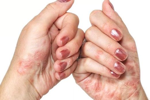 Контактный дерматит: причины, виды, лечение