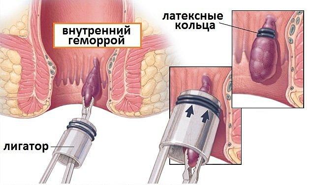 Легирование геморроидального узла