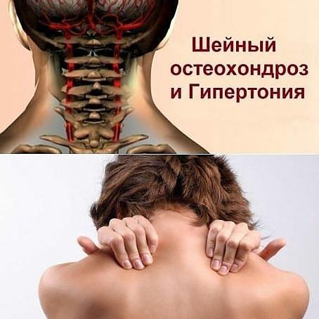 Некоторые причины боли в шее