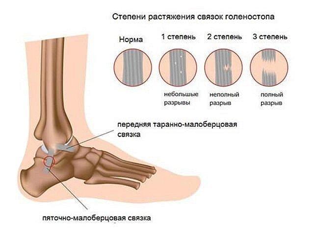 Степени растяжения связок на примере травмы голеностопа