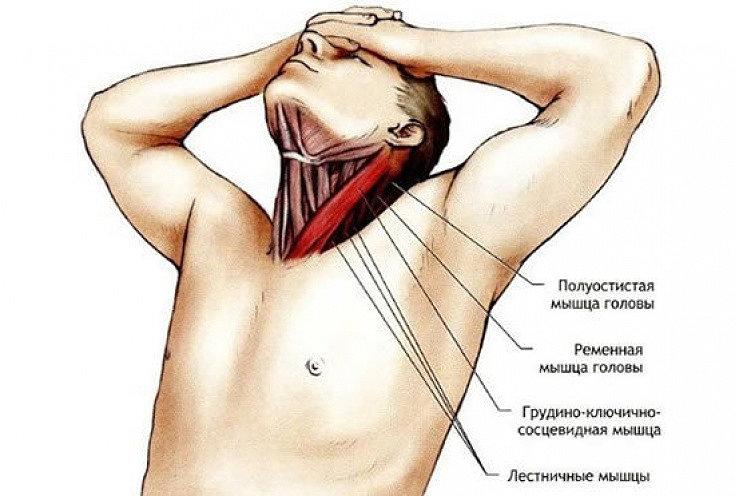 Мышцы шеи, наиболее подверженные растяжению