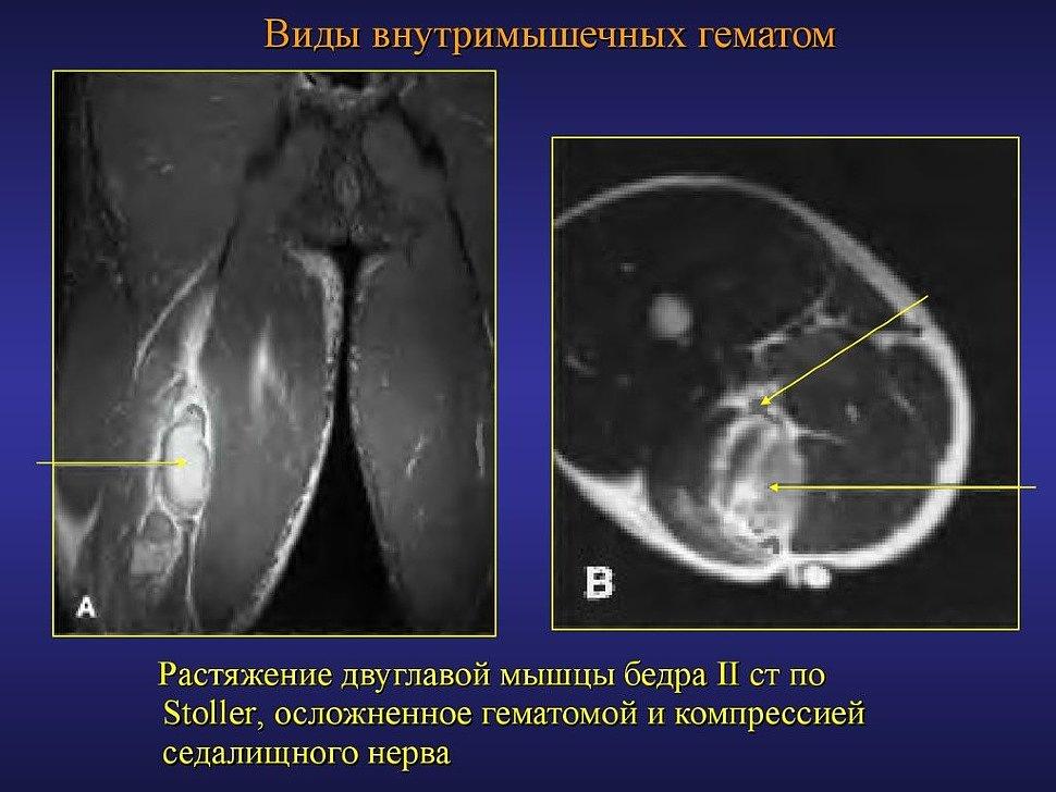 Как выглядит растяжение мышц бедра