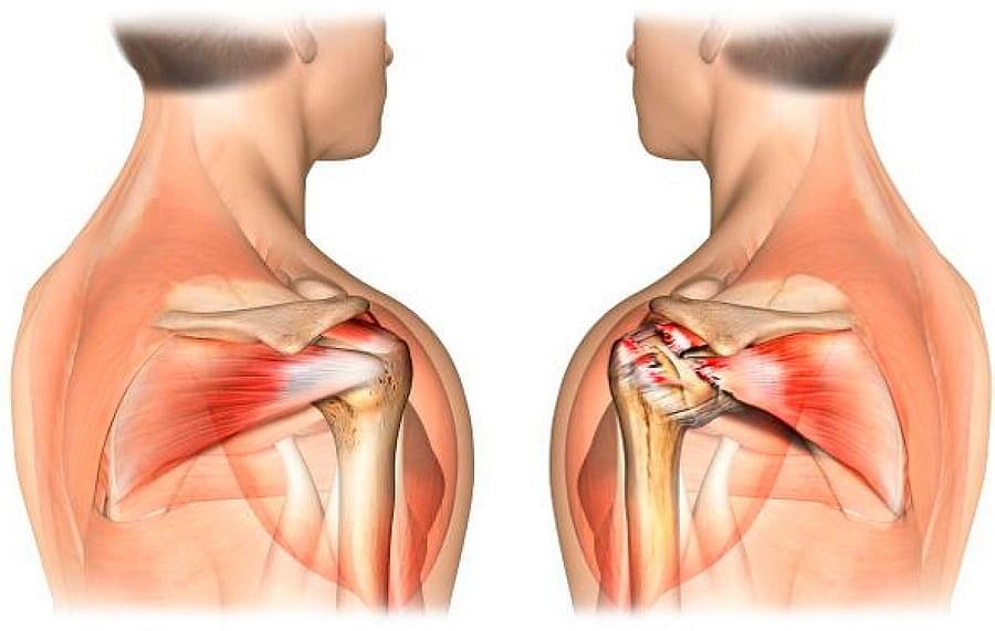 Повреждение мышцы плеча