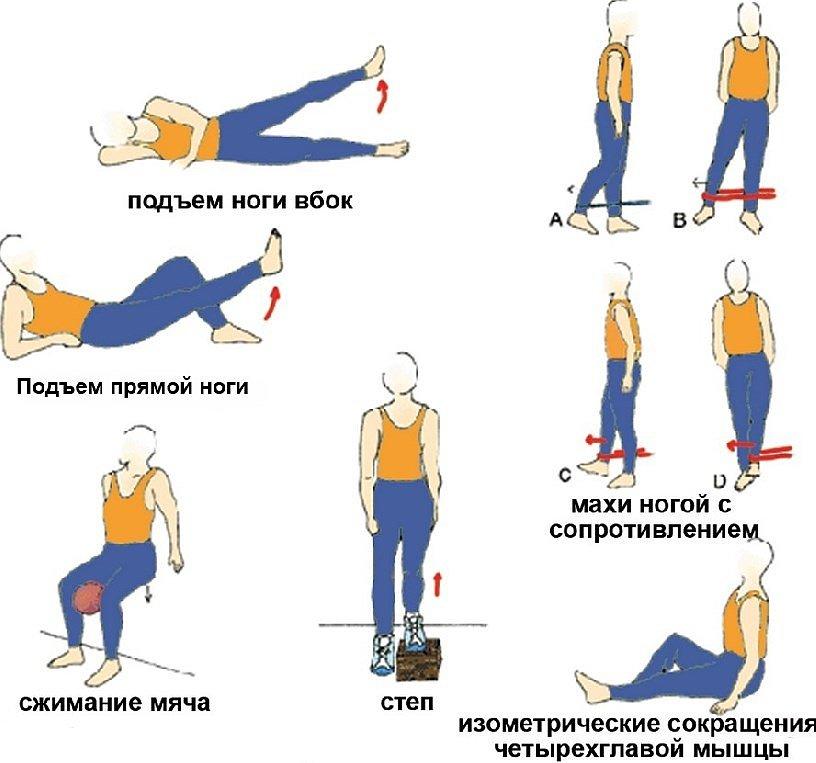 ЛФК при растяжении колена