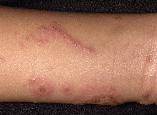 Контактный дерматит на руке